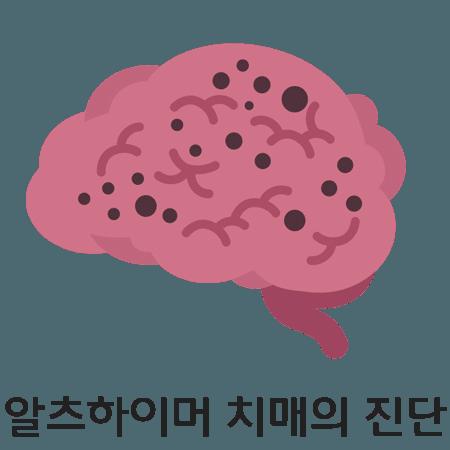 alzheimer-dementia