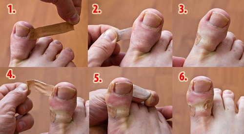 Ingrown_toenail_treatment