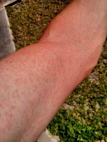 지카바이러스 감염으로 인한 발진. commons.wikimedia.org