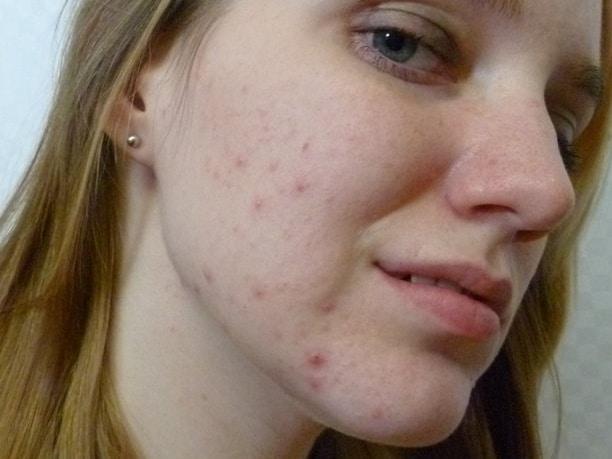 acne-girl