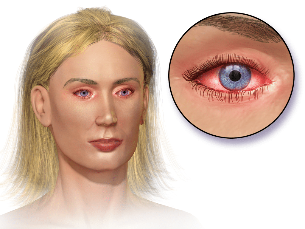 알레르기 결막염(출처 : 위키페디아)