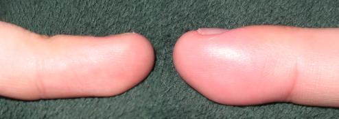myparonychia