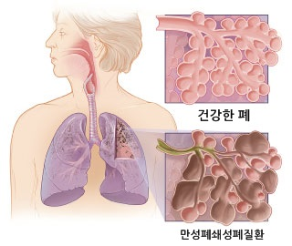 COPD lung