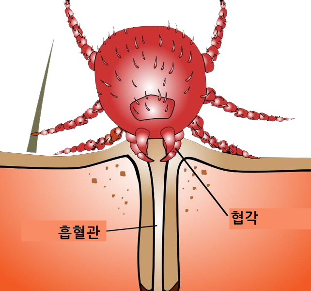 털진드기흡혈