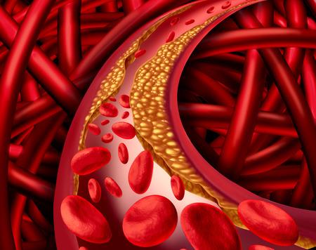 혈관속 콜레스테롤