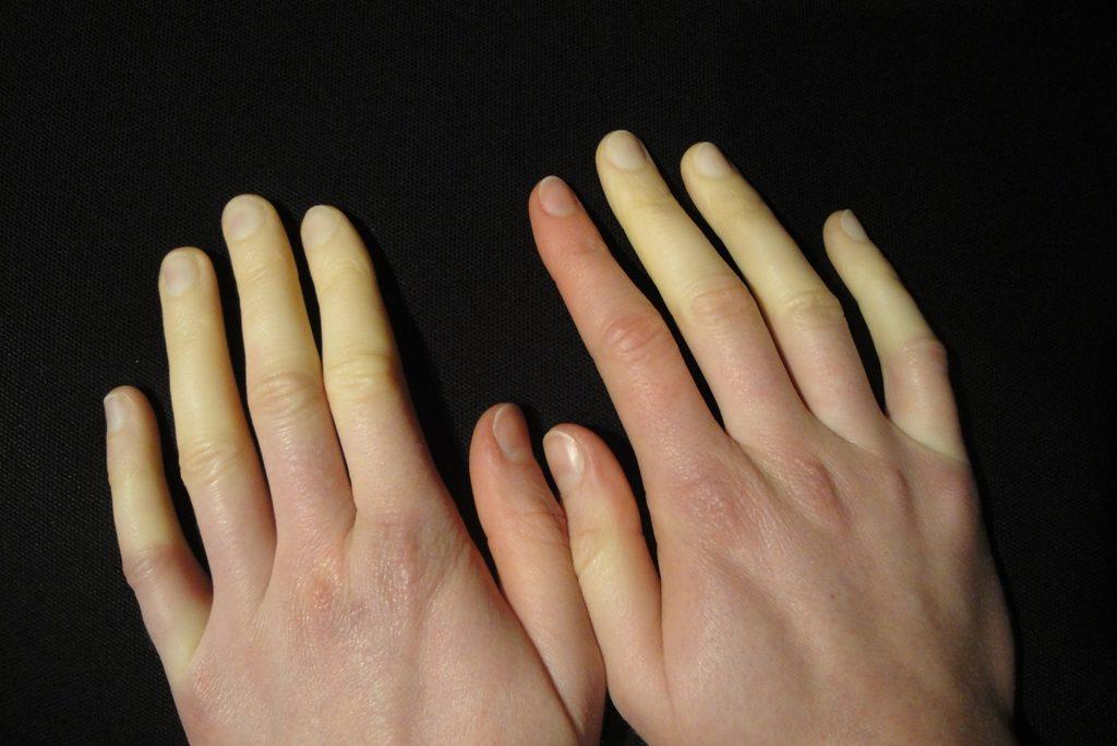 레이노 증후군 Raynaud Syndrom