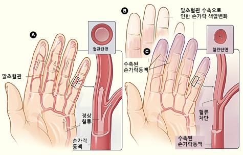 레이노 증후군 기전