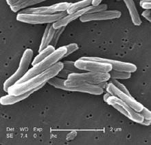 결핵균 전자현미경사진