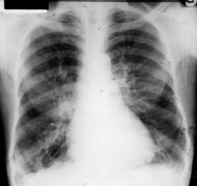 기관지확장증 방사선 검사 X-ray